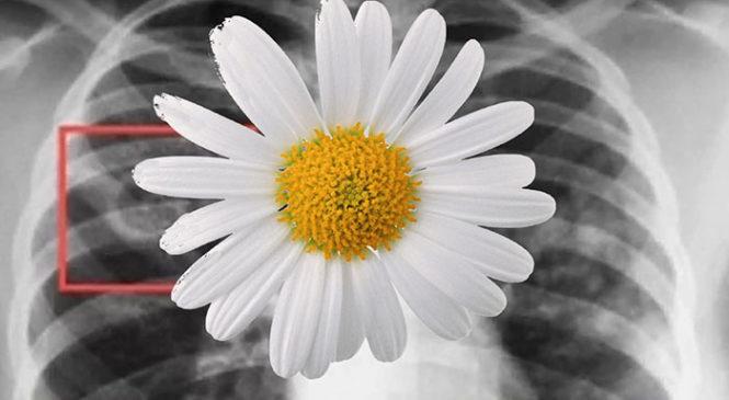 С 24 марта в Чувашии стартует месячник «Белая ромашка»